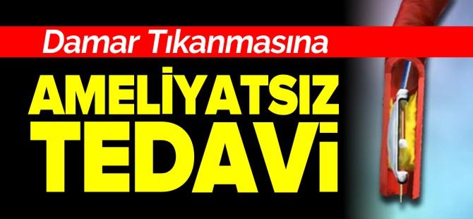 DAMAR TIKANMASINA AMELİYATSIZ TEDAVİ !