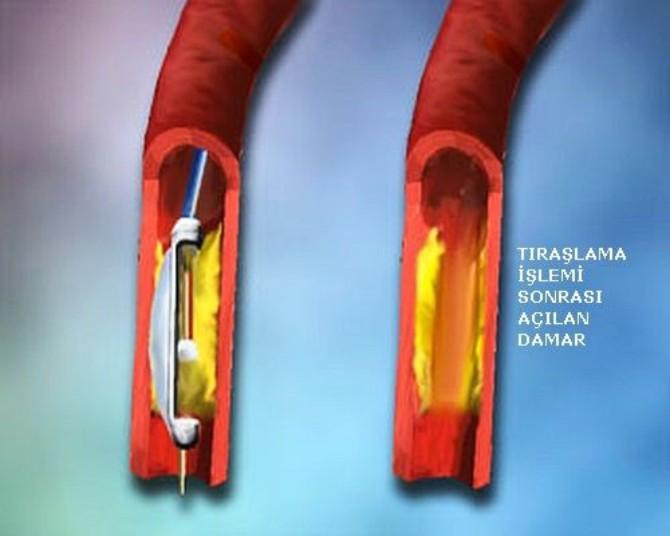 damar-tikanmasina-ameliyatsiz-tedavi-3.jpg